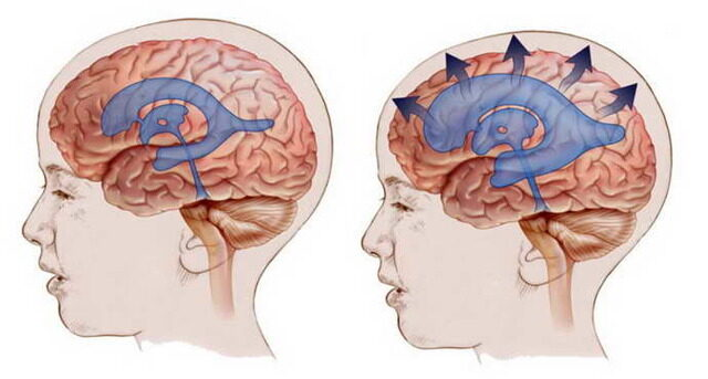 Симптомы сужения сосудов головного мозга. Причины, лечение.